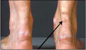 Hiperholesterolemija2