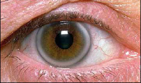 Hiperholesterolemija3
